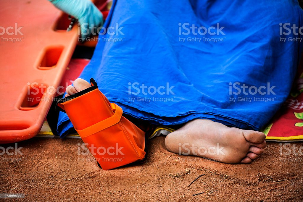 Human leg with a splint stock photo
