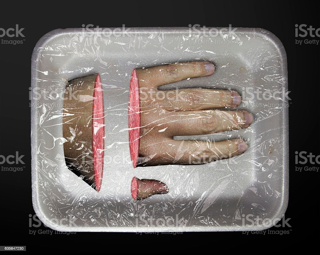 human limb in a plastic container stock photo