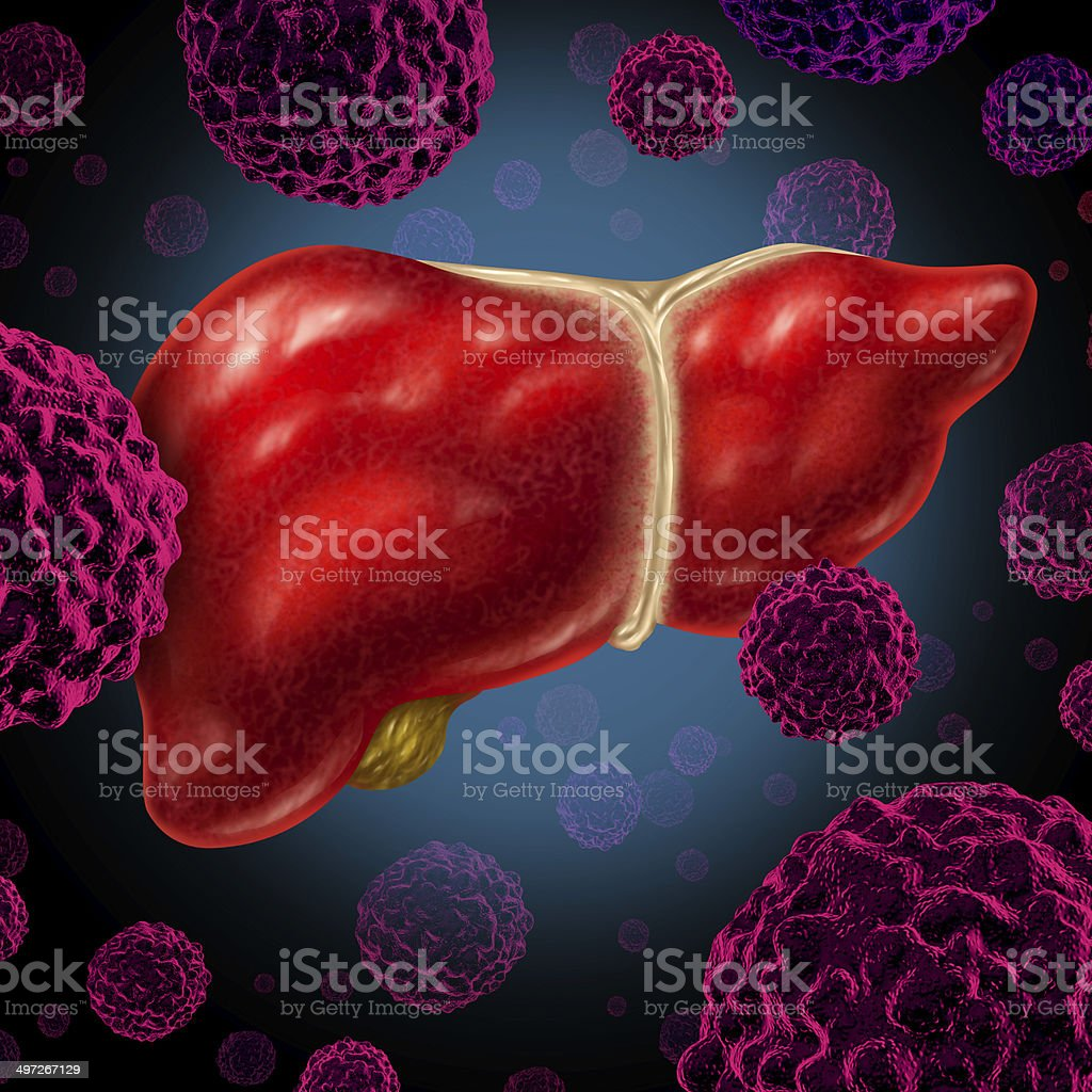 Human Liver Cancer stock photo