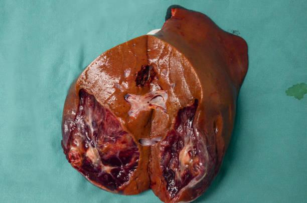 Fígado humano de doenças hepáticas, como câncer. - foto de acervo