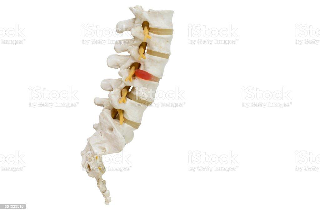 Human Lumbar Spine Model Demonstrating Herniated Disc Stock Photo ...