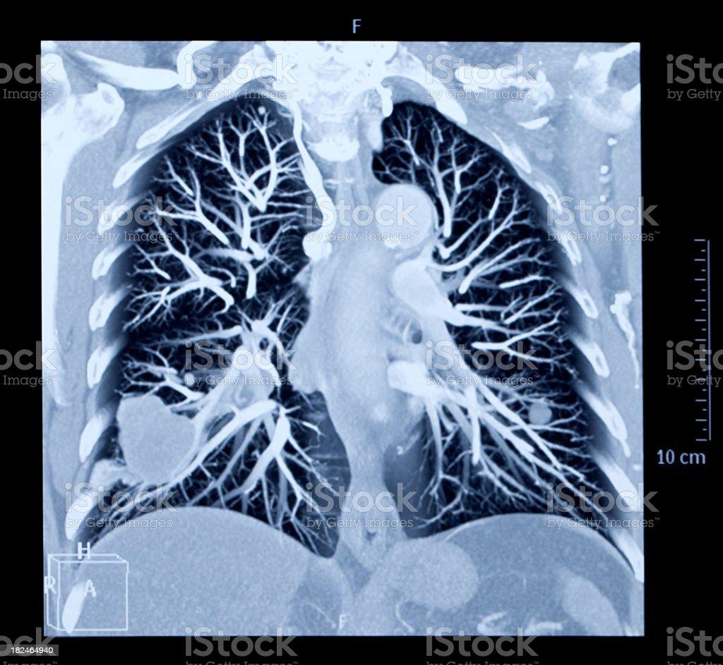 Human  Lung  X-ray image royalty-free stock photo
