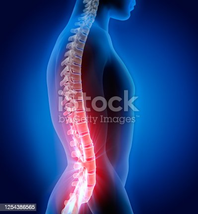 3D illustration of Spine with pain symptoms - Part of Human Skeleton.