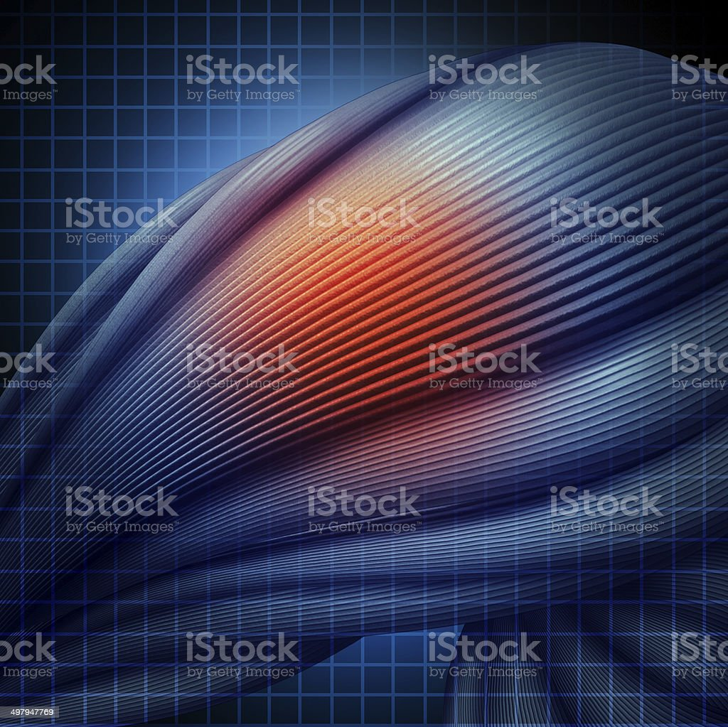 Human Muscle Injury stock photo