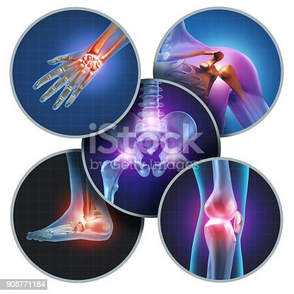 istock Human Painful Joints 905771184