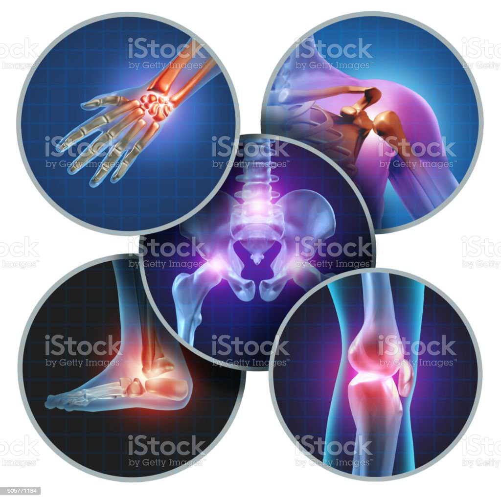 Human Painful Joints stock photo