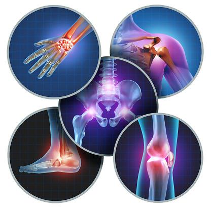 Mänskliga Ledvärk-foton och fler bilder på Alternativmedicin