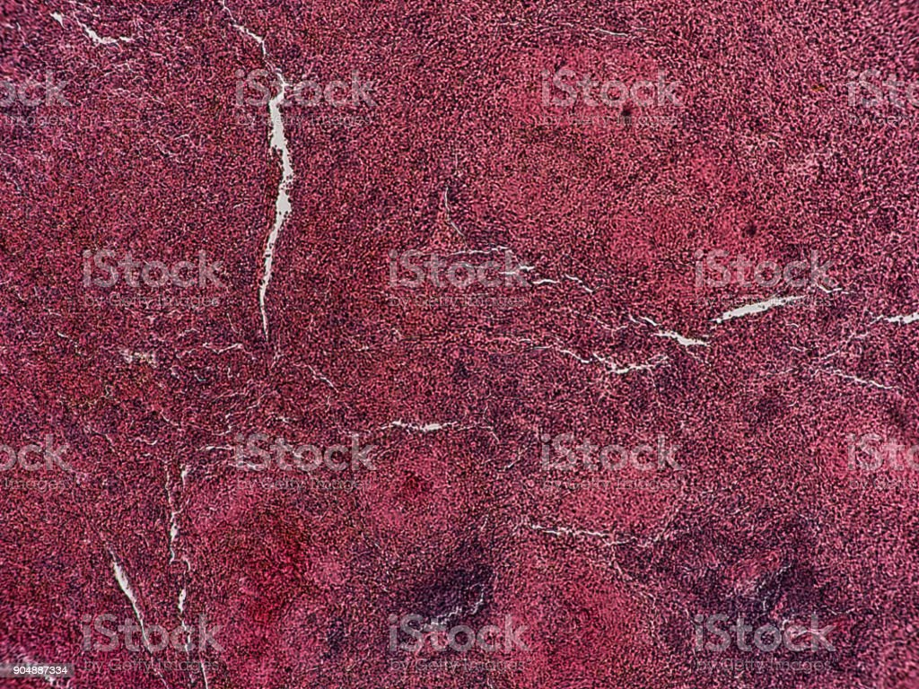Human Pathology - Infarct of spleen - Injury of circulatory organs and blood-forming organs stock photo