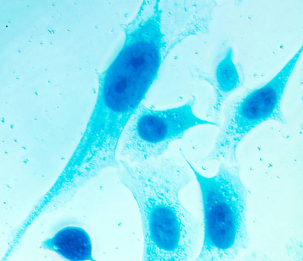 PC-3 human prostate cancer cells stock photo