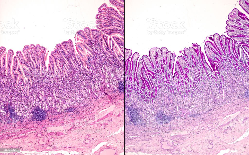 Human pyloric mucosa stock photo