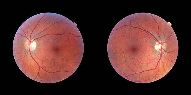 Human Retinas - Left and Right Eye Pair of human retinas - left and right eye, same person high scale magnification stock pictures, royalty-free photos & images