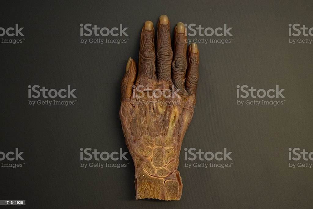 Human right hand before dissection - top view - HD stock photo