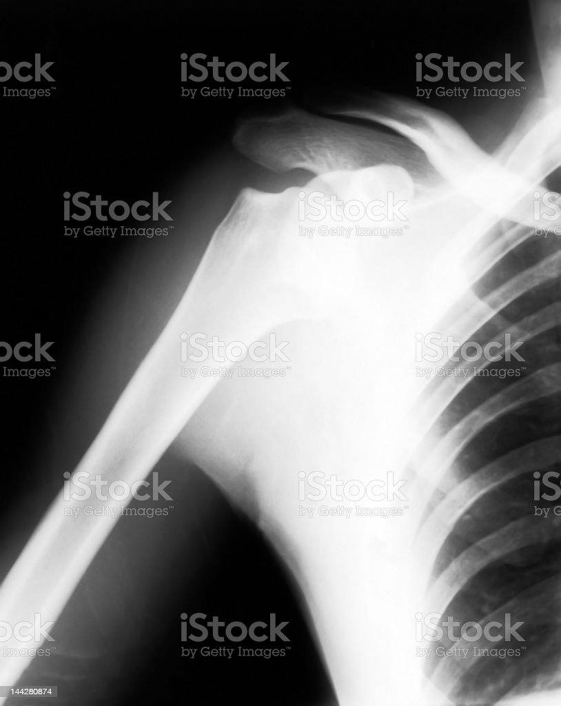 Human Shoulder stock photo