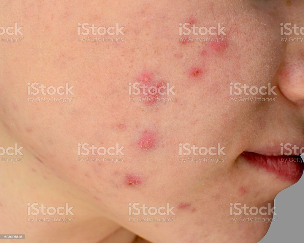 Human skin Acne stock photo