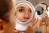istock human skin with acne 539257431