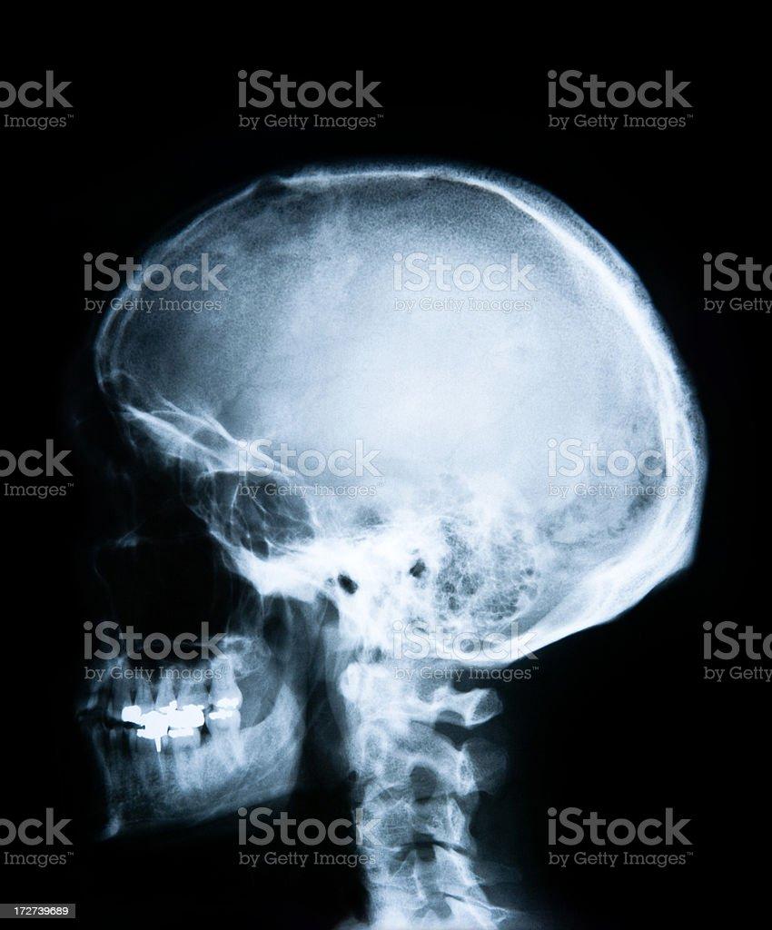 human skull head x-ray (side shot) XXL royalty-free stock photo