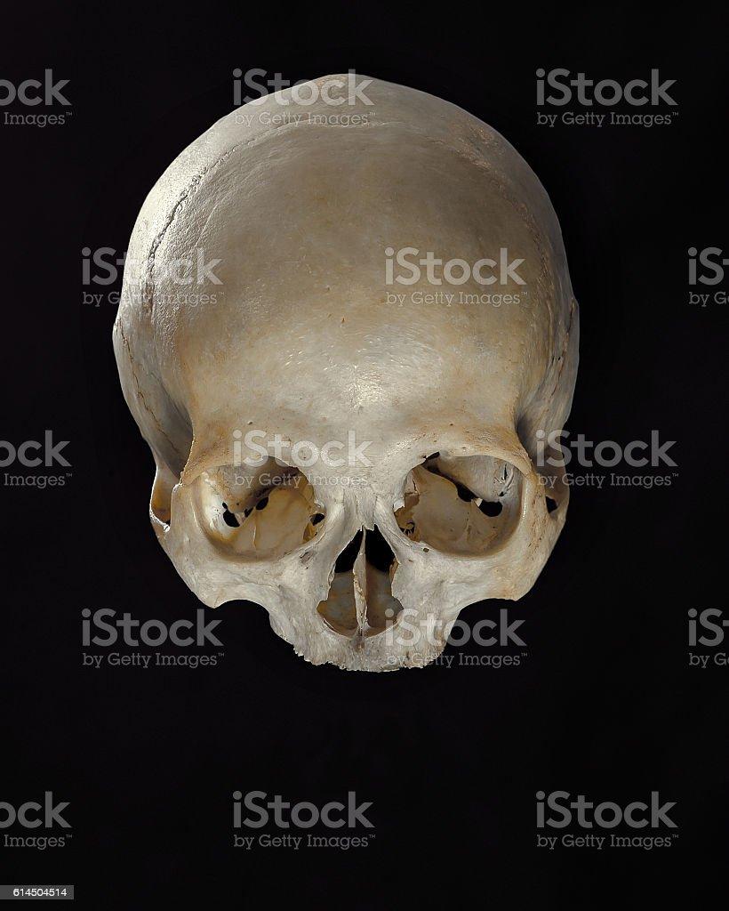 Human Skull On Black Background Front View Stock Fotografie Und Mehr