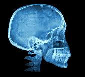 人の頭蓋骨 X 線画像