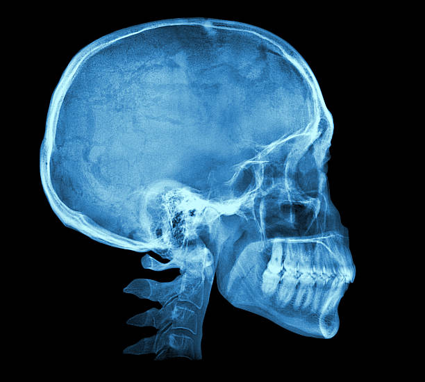 Human skull X-ray image Human skull X-ray image isolated on black human skull stock pictures, royalty-free photos & images