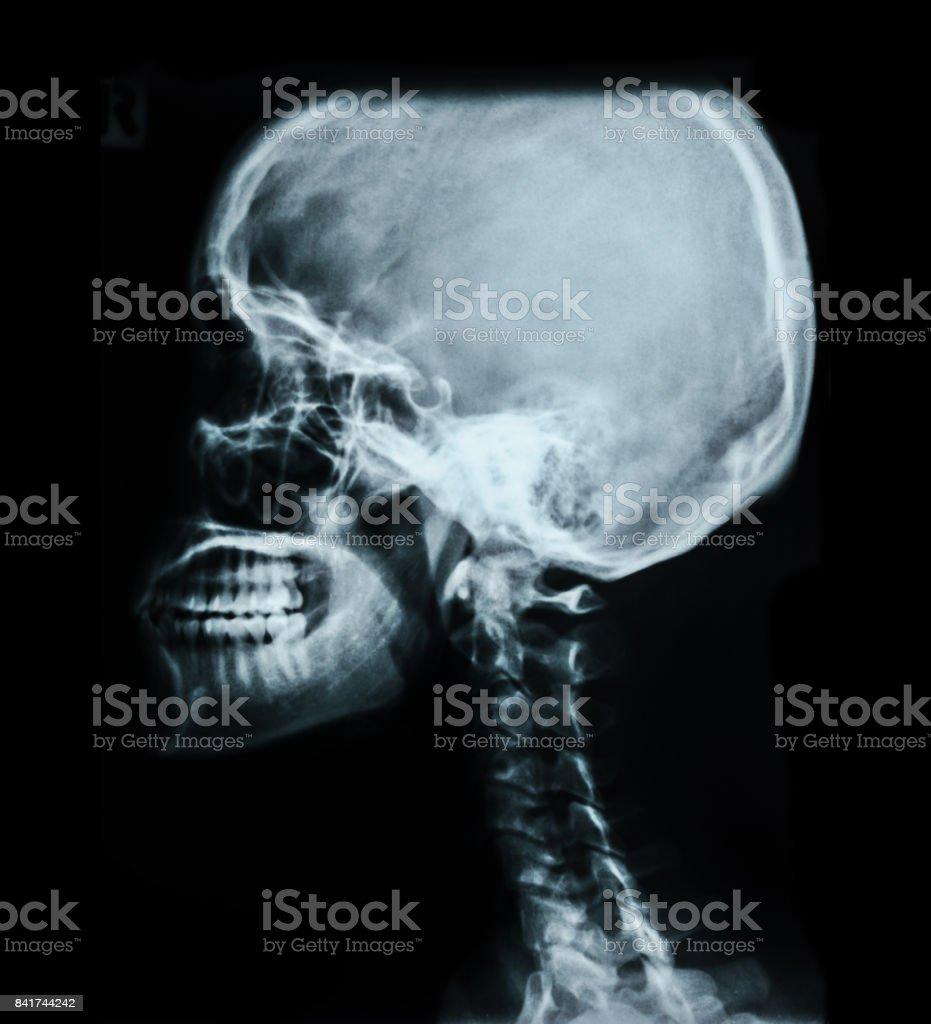 Human Skull Xray Image Stock Photo & More Pictures of Anatomy   iStock