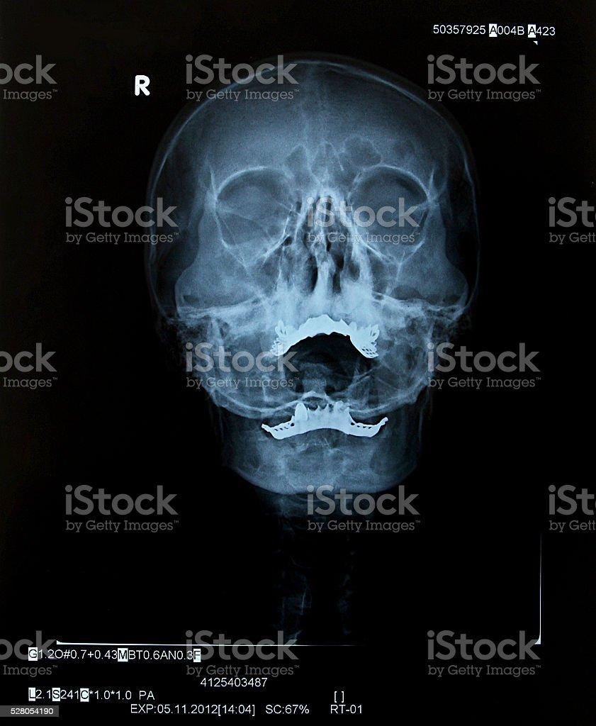 Cráneo humano xray - foto de stock