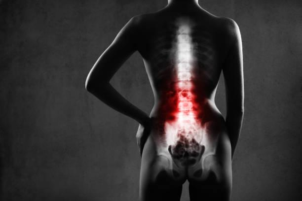 Épine humaine en radiographie, sur fond gris. - Photo