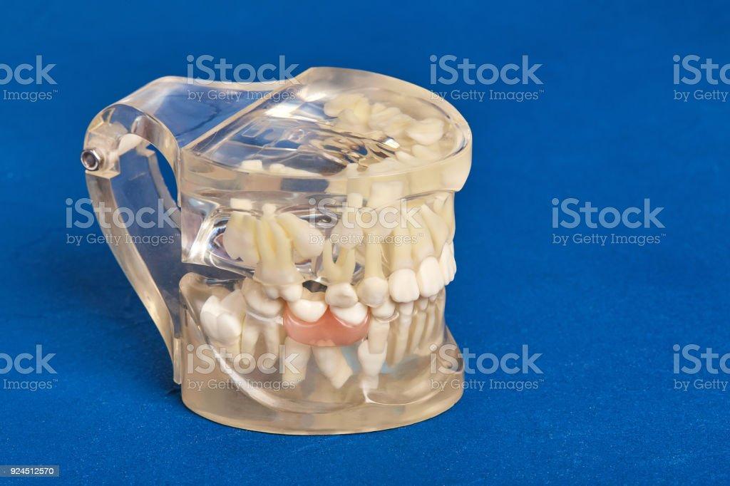 Fotografía de Modelo Dental Ortodoncia De Dientes Humanos Con ...