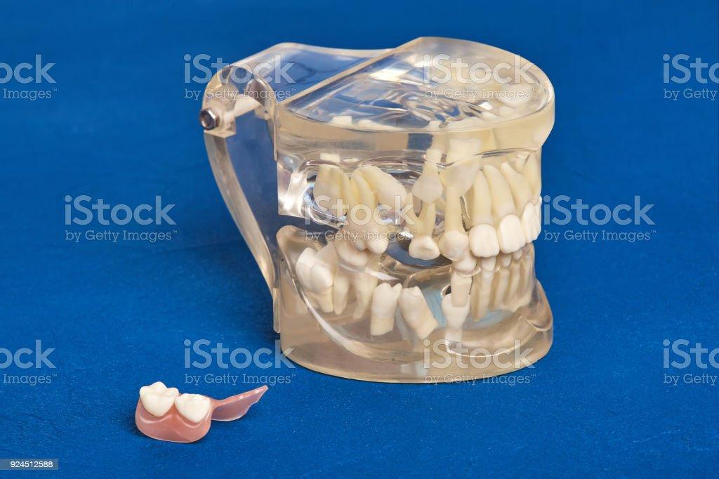 Modelo Dental Ortodoncia De Dientes Humanos Con Implantes Aparatos ...