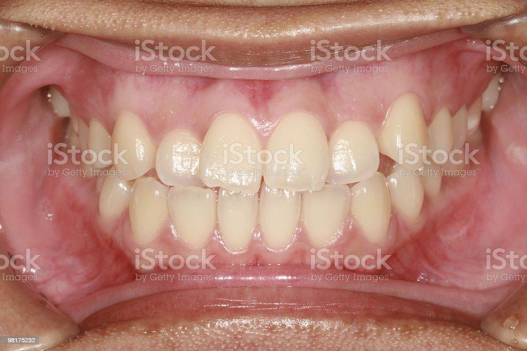 Denti umani foto stock royalty-free
