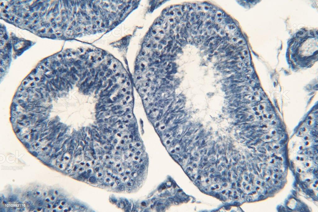 Menschliche Hoden Unter Mikroskop Ansicht Zeigt Spermatogonien ...