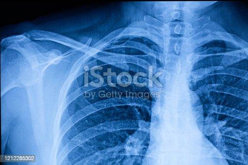 Human Thoracic cavity X-ray Film
