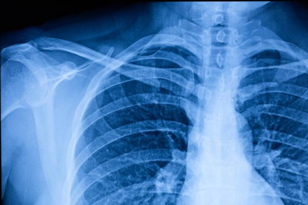 film de rayons x de cavité thoracique humaine - sternum photos et images de collection