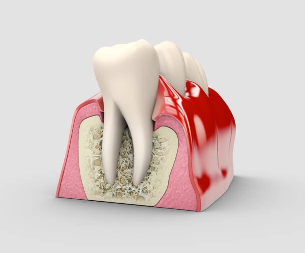menselijke tand, tandheelkundig implantaat, voorraad 3d illustratie. - tandvleesontsteking stockfoto's en -beelden