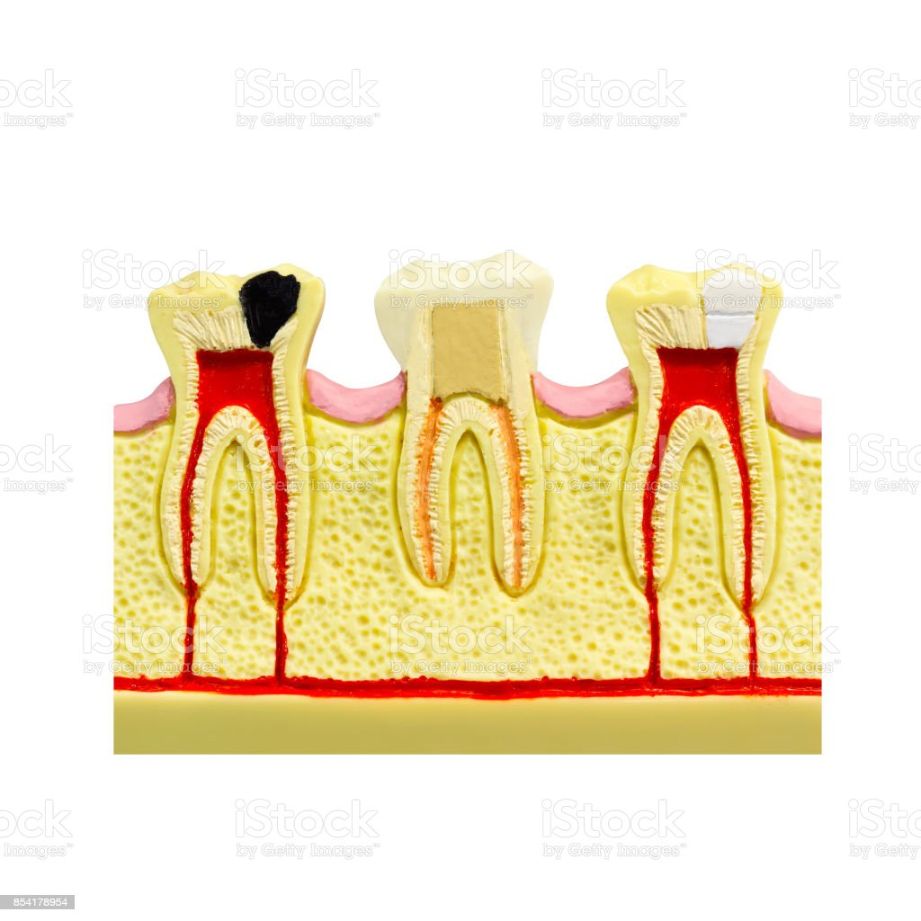 Human tooth gum cross section Tooth Root canal Tooth Detailed anatomy tooth color image stomatology flat style tooth concept design Dental illustration tooth picture dental cavitation treatment layout stock photo