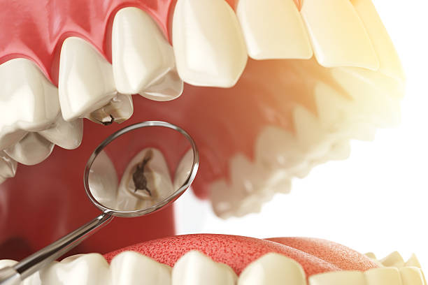 Human tooth with caries, hole and tools. Dental searching concep stock photo