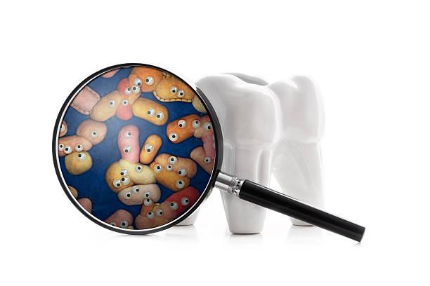 human tooth with funny bacterial plaque - tandvleesontsteking stockfoto's en -beelden