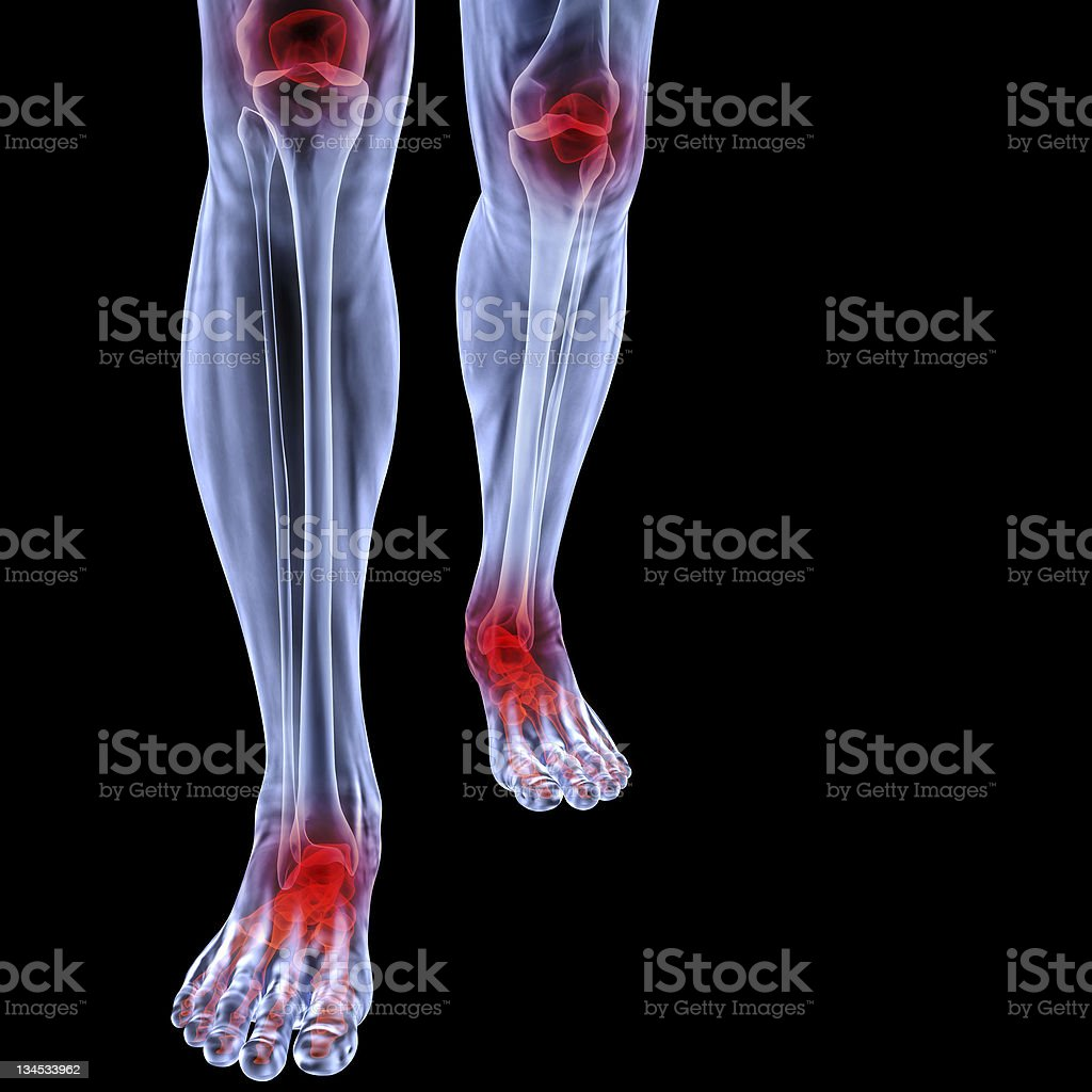 Human X-ray of legs and feet stock photo