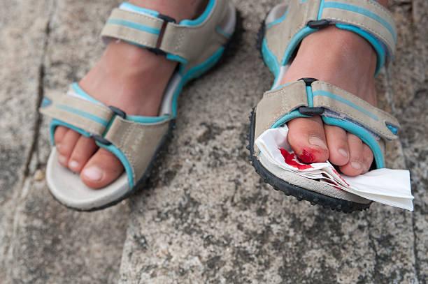Hurt toe stock photo