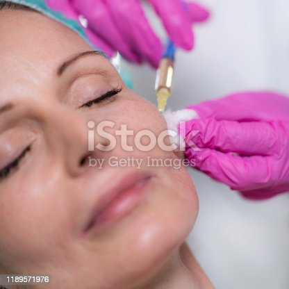 Anti-Aging Treatment. Doctor with surgical gloves marking senior women's face for hyaluronic injection treatment