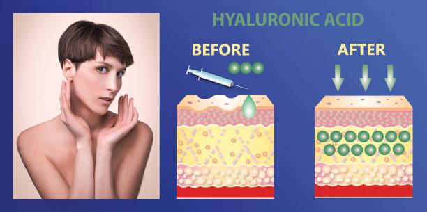 Hyaluronsäure. Hautpflegeprodukte. Hautverjüngung – Foto
