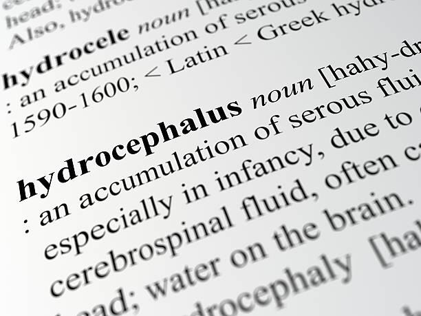 hydrocephalus - definition krankheit stock-fotos und bilder
