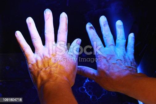 check with ultraviolet light after desinfection of hands shows hygiene shortcomings (dark areas)