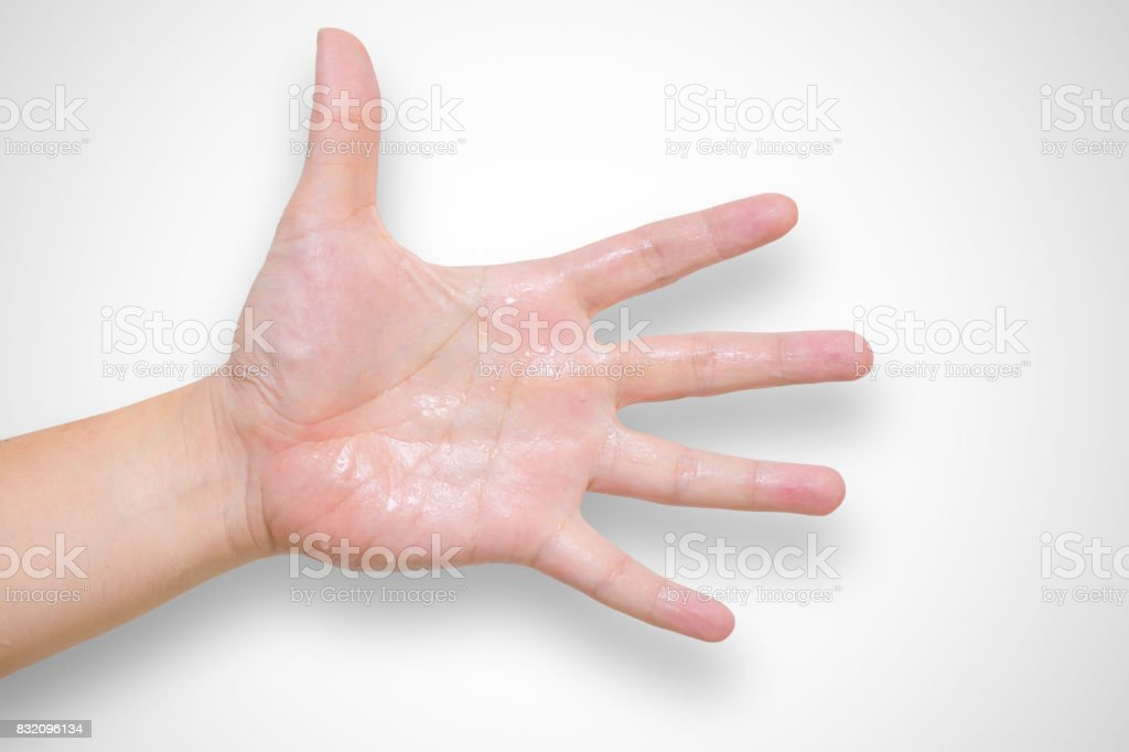 Hyperhidrosis wet hand from sweat syndrome stock photo