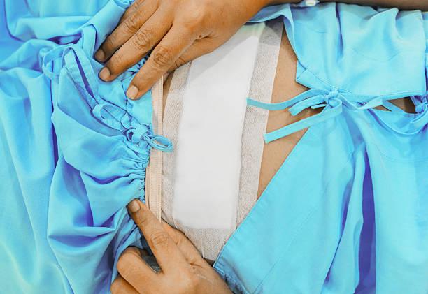 Hysterectomy surgery stock photo