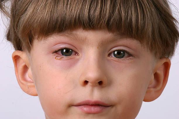 ill allergic eyes - conjunctivitis stock photo