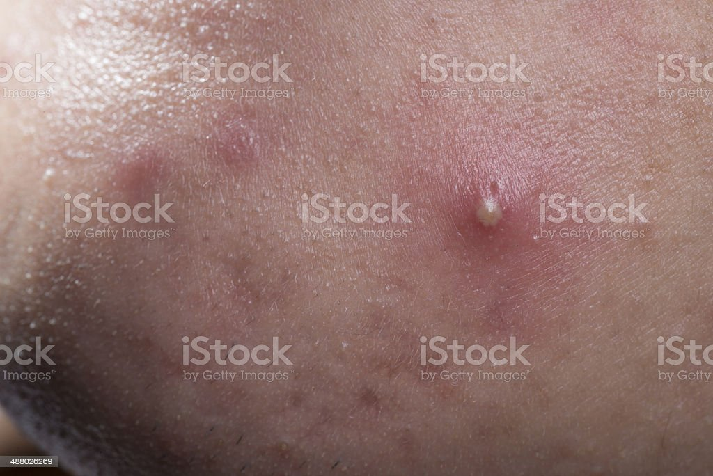 acne skin disease Acne, the most common skin disorder in the us,  what's that 10 of the most common skin conditions   disease and treatments acne.
