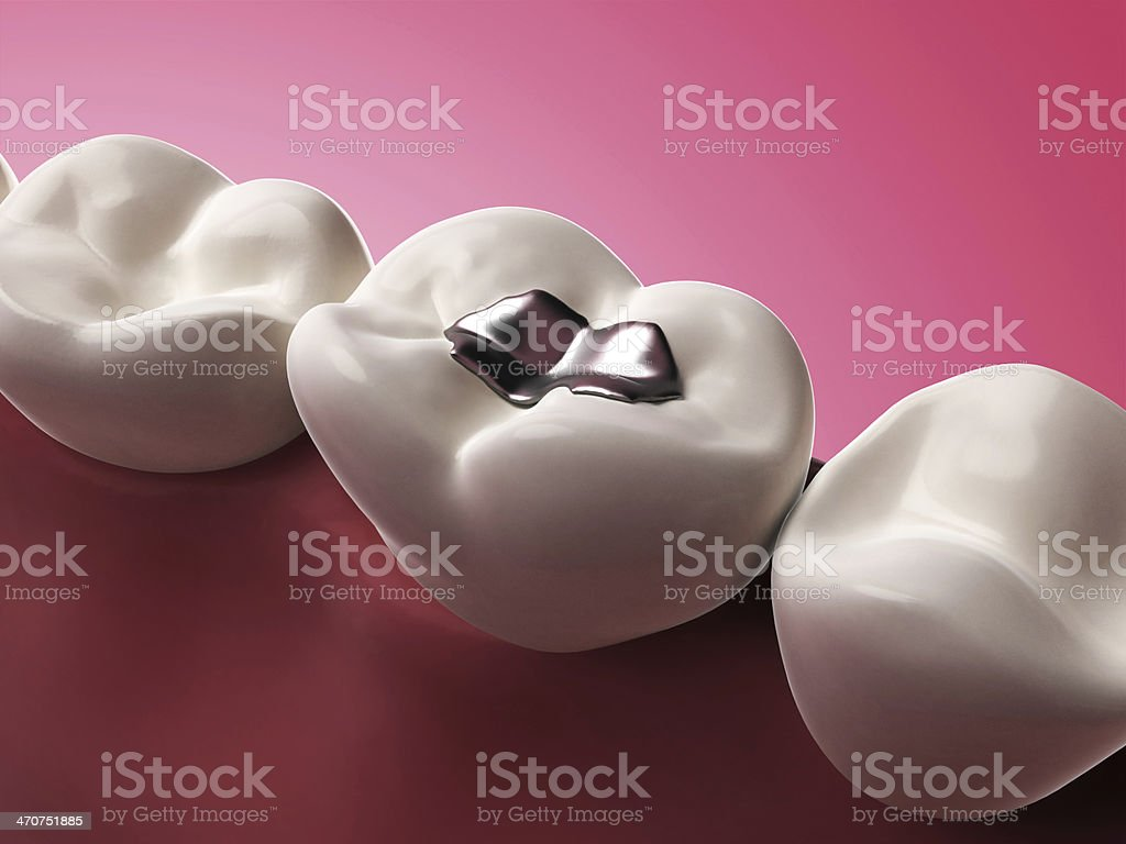 3D illustration of a silver tooth filling on a molar royalty-free stock photo