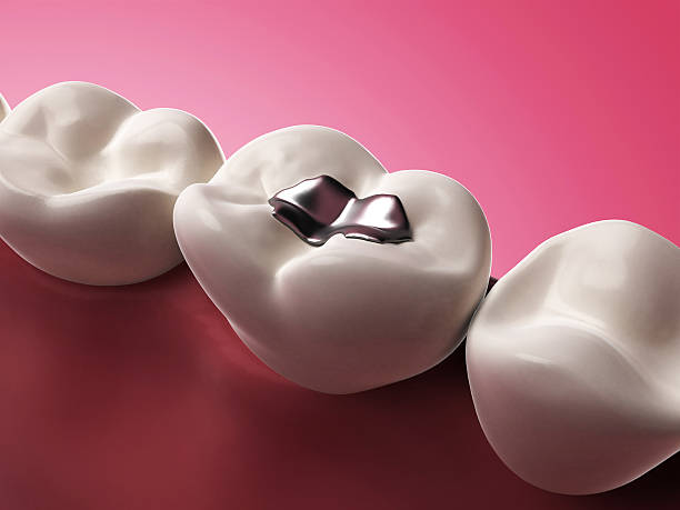3D illustration of a silver tooth filling on a molar stock photo
