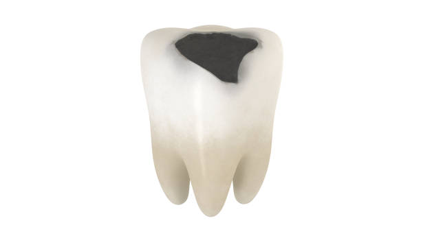 3D illustration of a tooth decay stock photo
