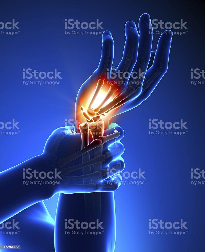 Illustration of burning wrist pain stock photo